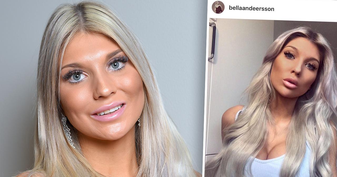 Bella Andersson om skönhetsoperationerna
