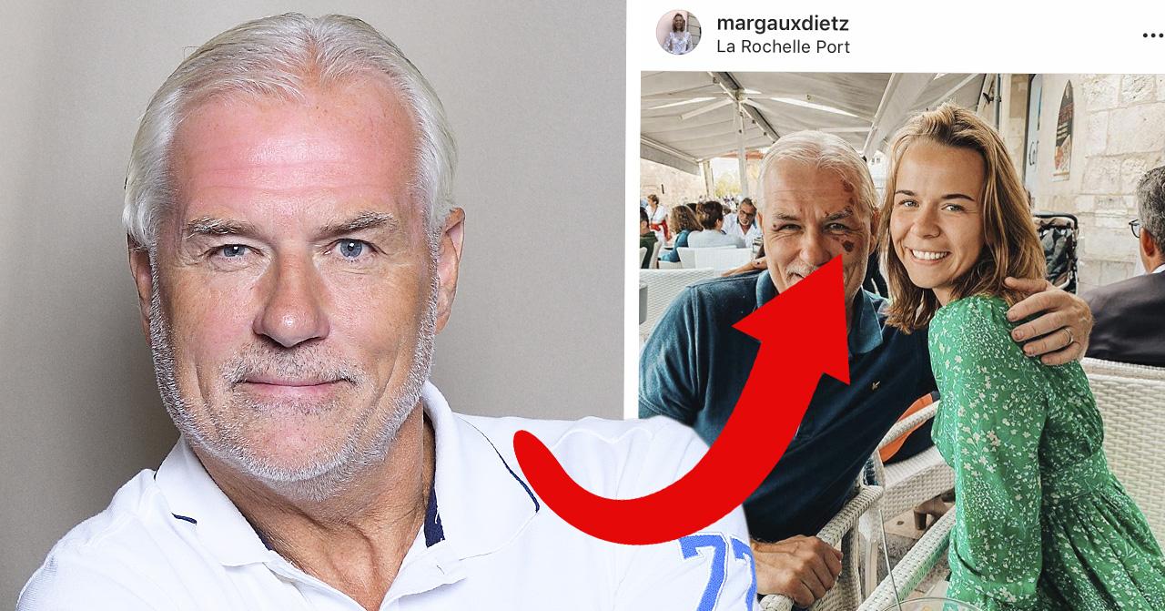 Glenn Hysén om skadan i ansiktet som han fick i en olycka innan Fångarna på fortet på TV4.