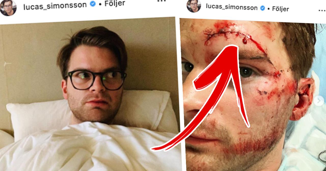 Lucas simonssons skräckskada efter sparkcykeln