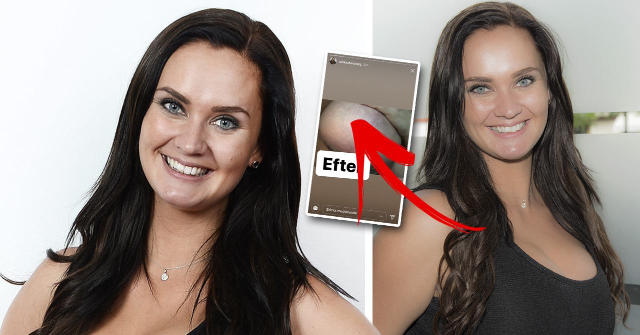 Paradise hotel-profilen Ulrika Forsberg visar upp bilder på sina ärr efter nya bröstoperationen.