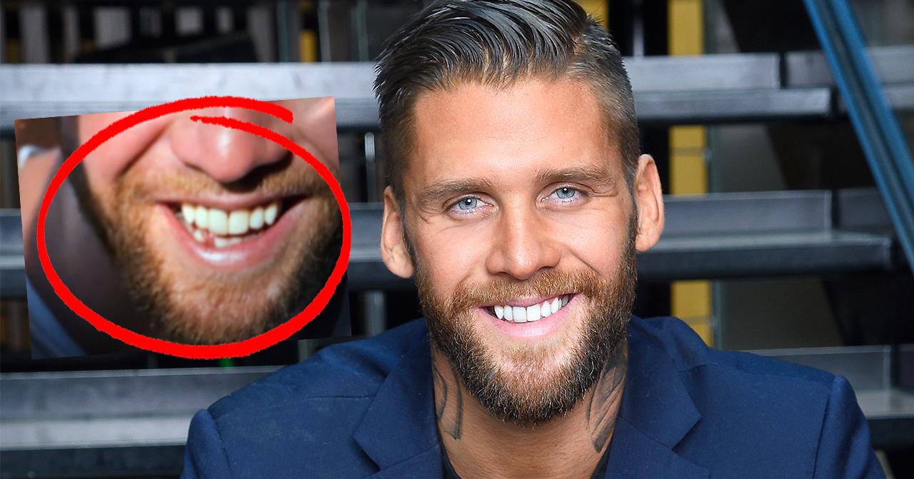 Sanningen bakom Simon Hermanssons skadade tand i Bachelor