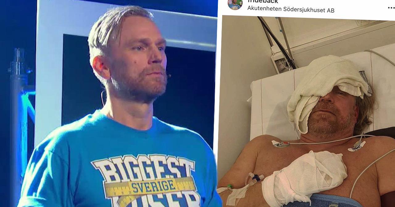 Biggest loser-profilen Michael Fridebäck lades akut in på sjukhus efter att ha börjat brinna.