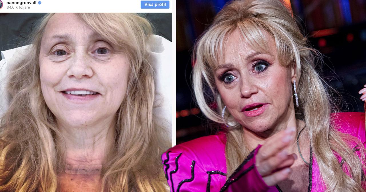 Nanne Grönvall opererad – avslöjar sjukdomen