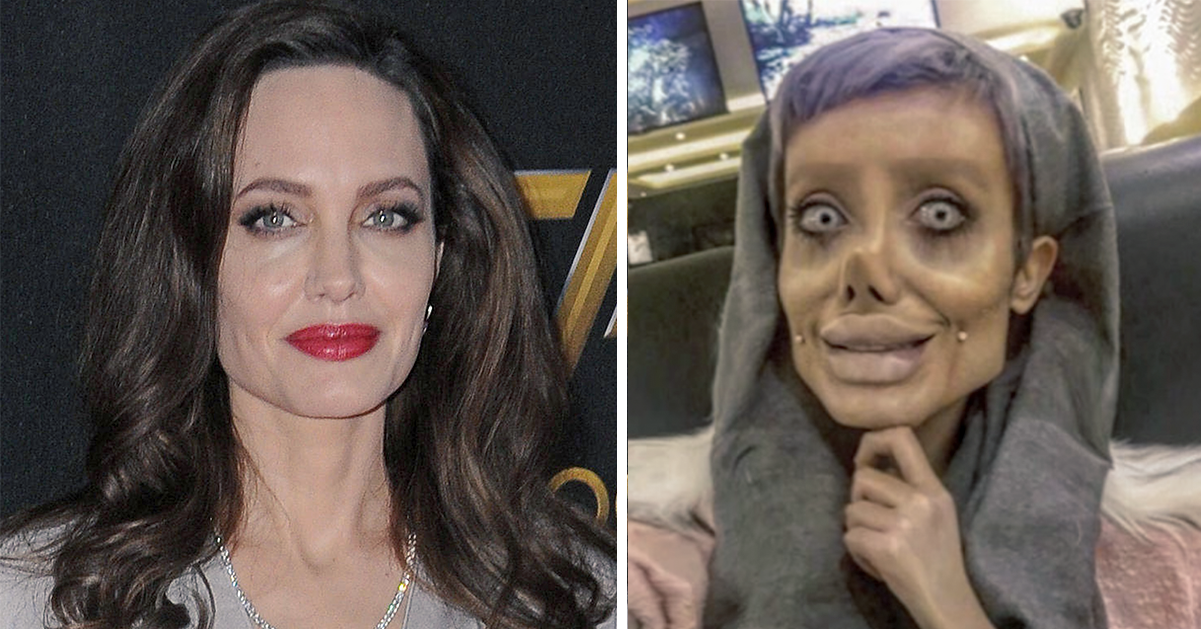 19-åringen har gjort 50(!) operationer för att likna Angelina Jolie