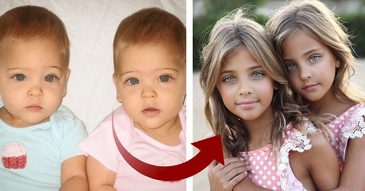 Så ser världens vackraste tvillingar ut idag